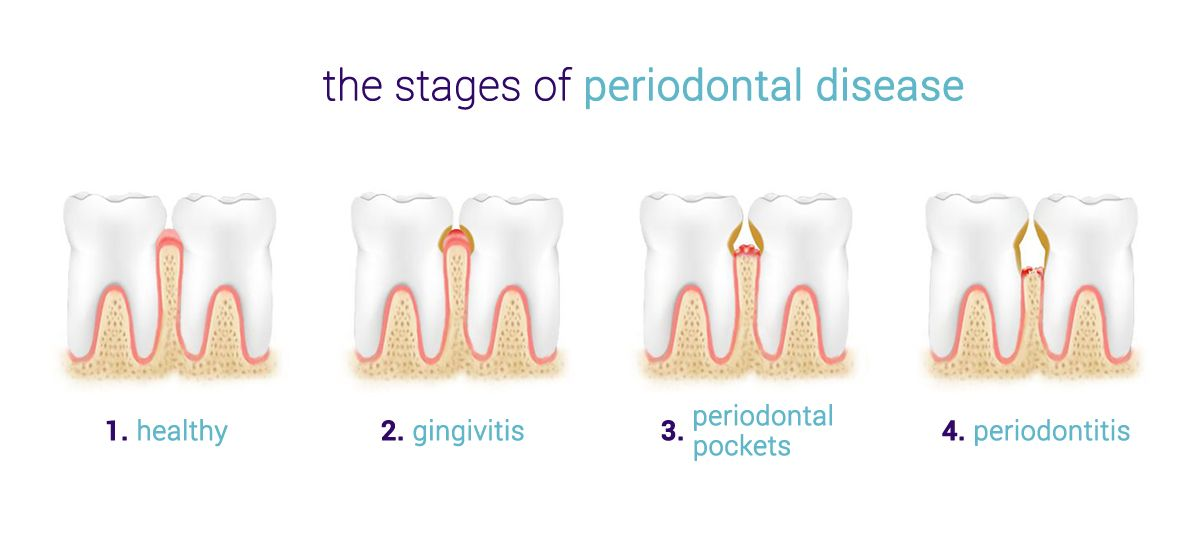 Stages of periodontitis gum disease.