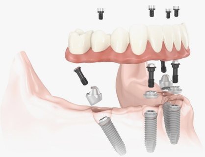 All-on-4 immediate loading implant system