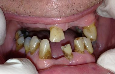 Dentures cause jaw bone loss | 5 day implant system