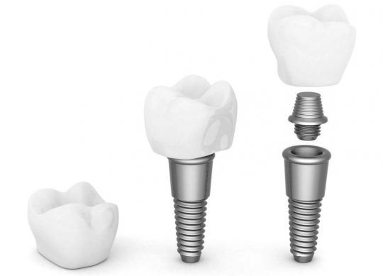 The structure and type of implants