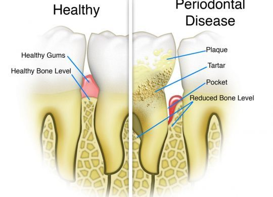 Periodontal gum disease: the `Silent Killer`