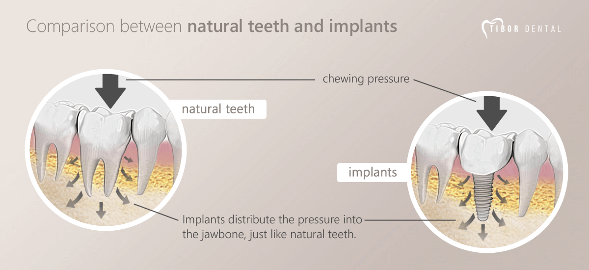 Comparison between natural teeth and implants