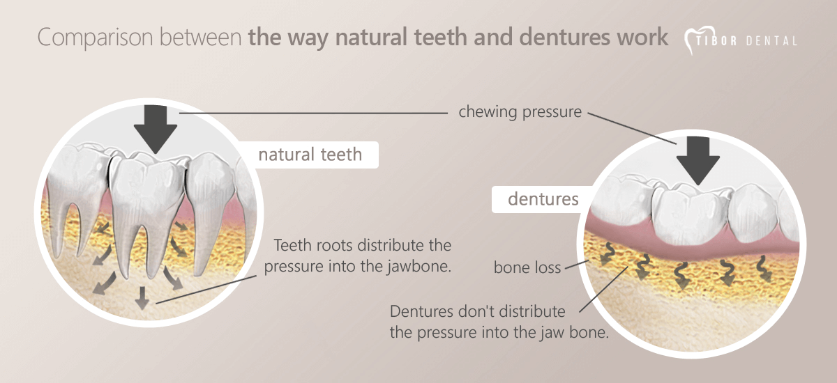 Comparison between the way natural teeht and dentures work