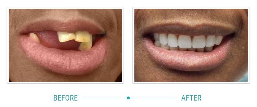 Dental implants before-after pictures