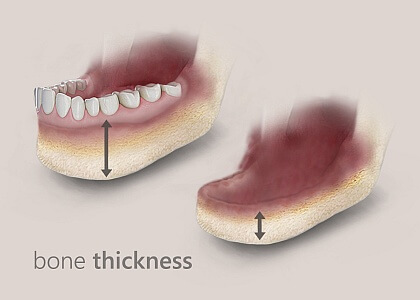 Bone loss in the jaw due to dentures
