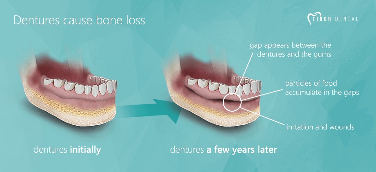 Dentures cause jaw bone loss