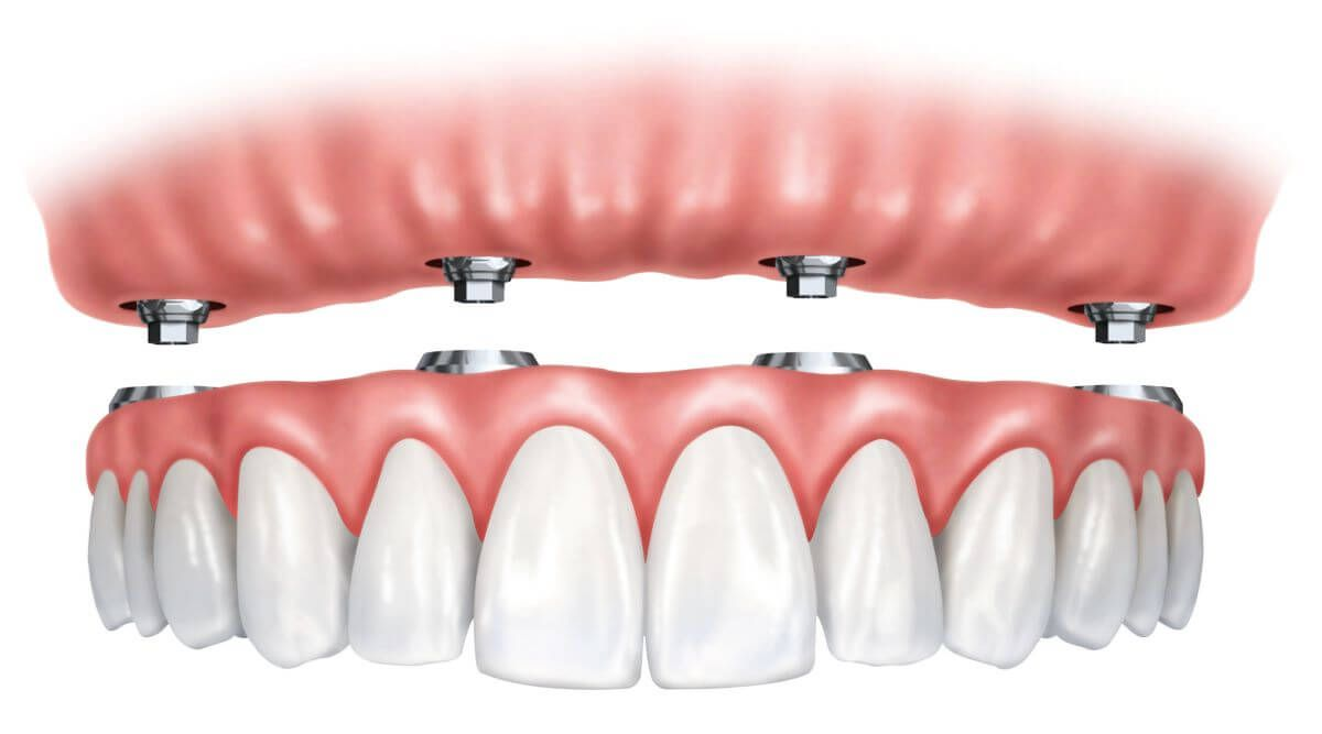A complete set of missing teeth, full upper or lower jaw restoration