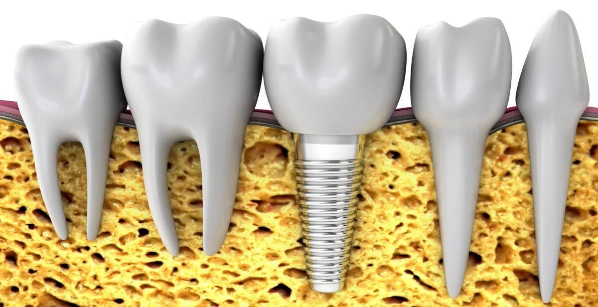 Osseointegration, if you have sufficient bone for implants