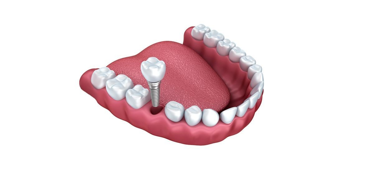 Implantation for one or two missing teeth