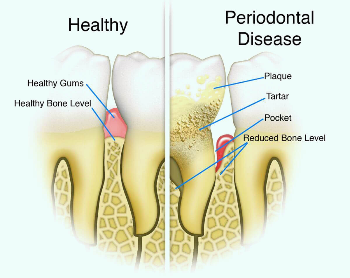 Periodontitis gum disease stages.