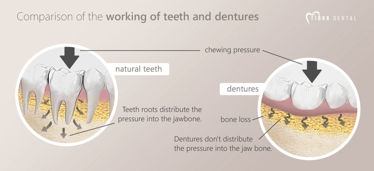 Comparison of the implants and dentures