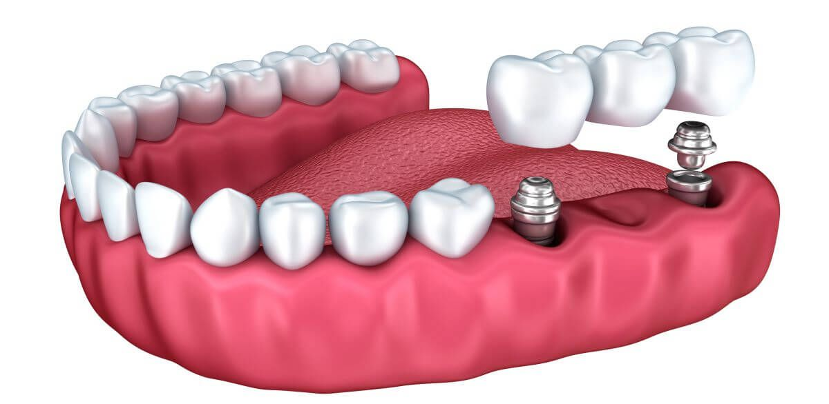 Implantation for replace three or more missing teeth