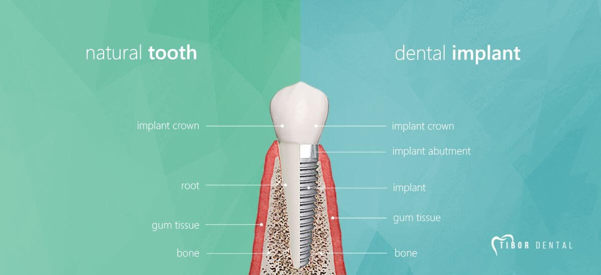 Dental implant structure compared to natural tooth