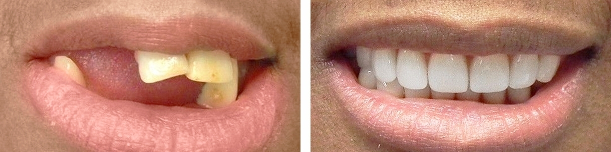 Dental implants: before-after