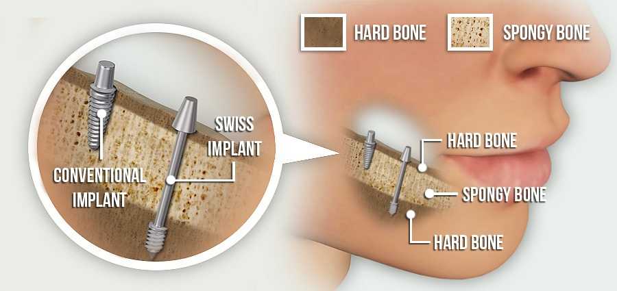 Conventional implants vs. Swiss 5 day implants