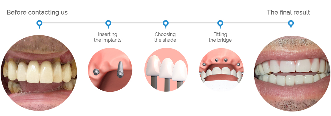 Swiss 5 day dental implant system - before and after