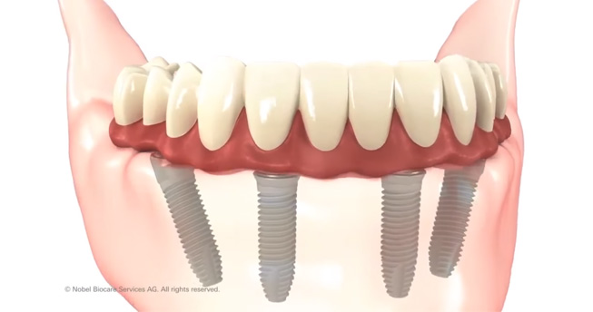 All-on-4 dental implant system